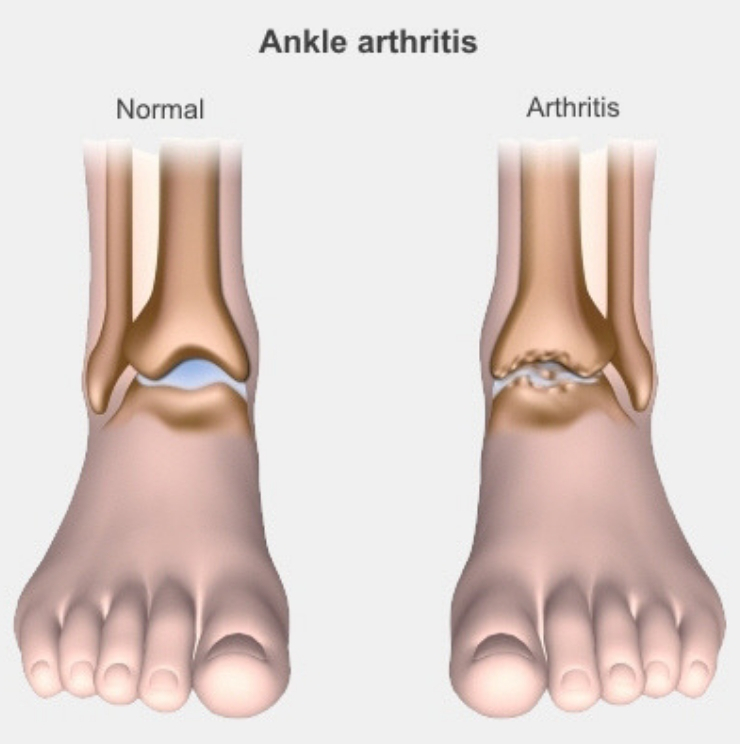 ankle arthritis treatment