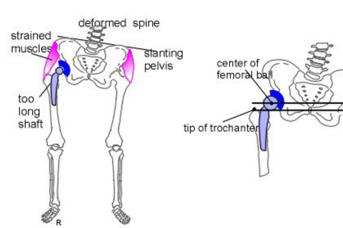 Complex limb deformity