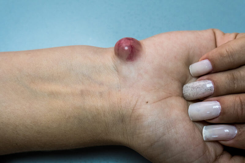 Ganglion cyst ,Ganglion cyst of the hand and the wrist, treatment of ganglion cyst in Kenya, hand doctors in Kenya