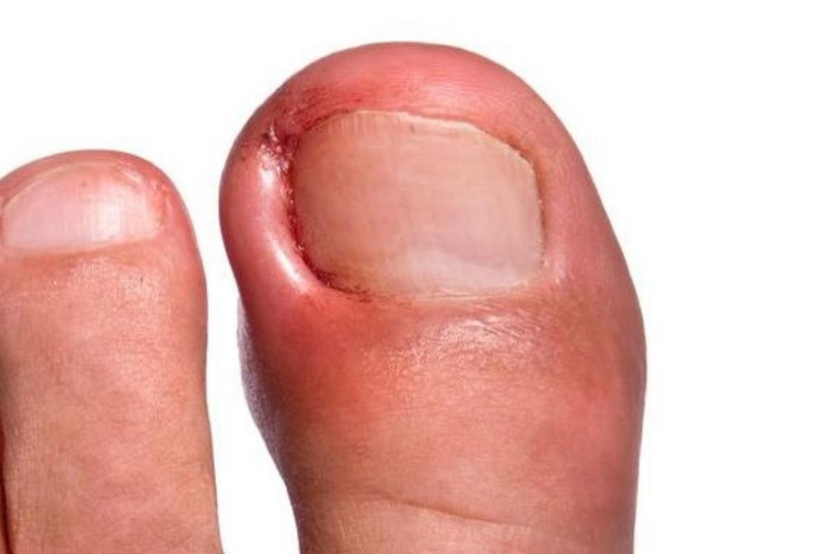 Ingrown toenail | Orthopaedic Surgeon in Kenya | NSOC