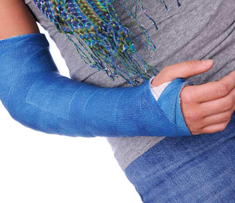 Cast and splints, cast and splints care, cast and splints care types,