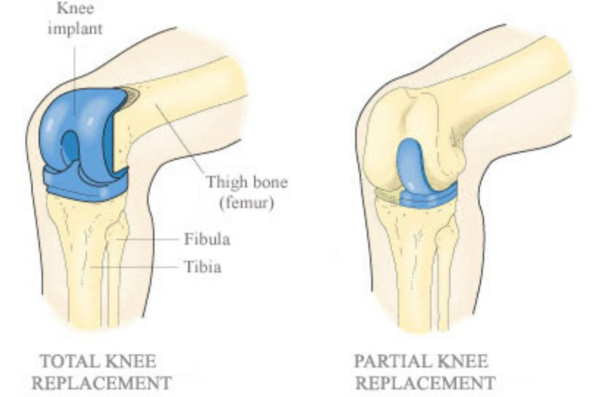 Total Knee Replacement Surgery And Procudere In Kenya Nsoc