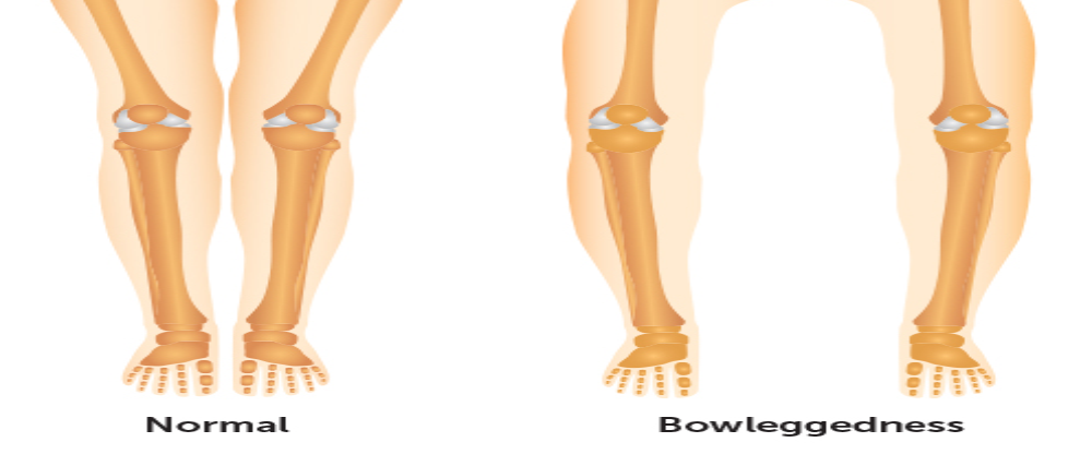 bowlegs in adults treatment in Kenya, Nairobi spine and orthopaedic centre