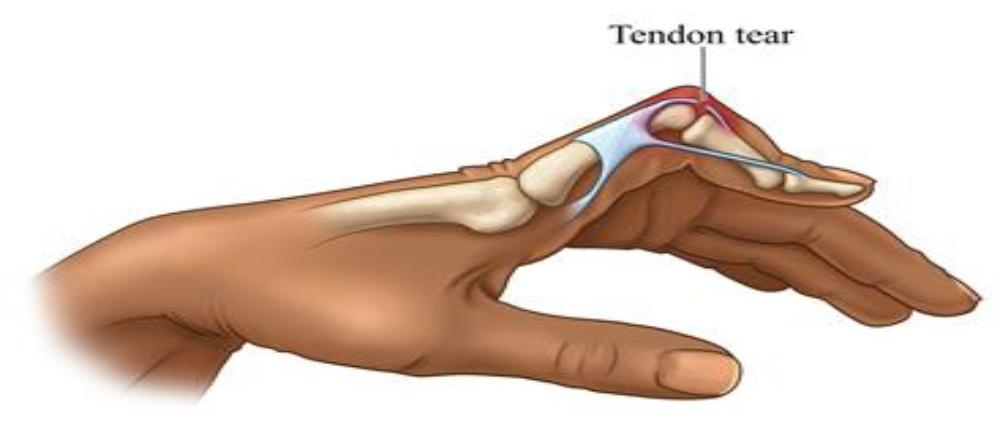 Boutonnierre deformity treatment in Kenya